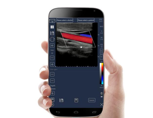 mobile Ultrasound